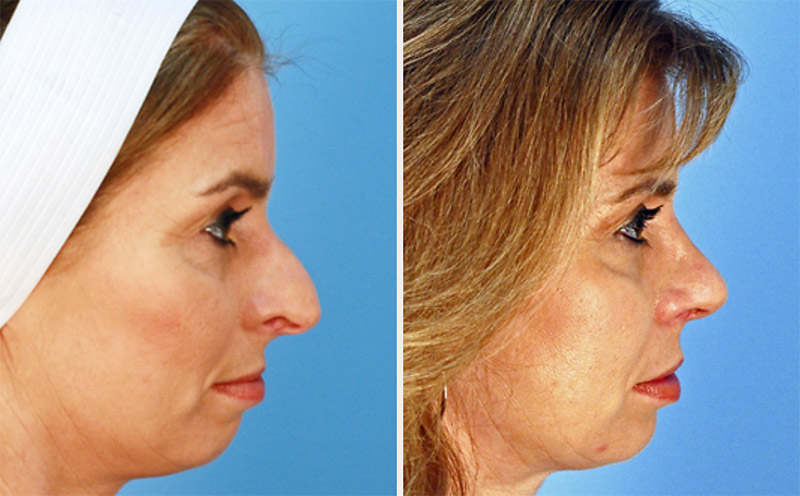 Rhinoplasty Virginia Beach